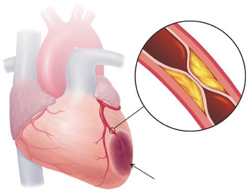 5 Dấu hiệu nhận biết bệnh mạch vành