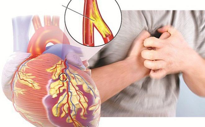 Vai trò của siêu âm tim đối với bệnh mạch vành