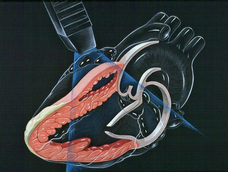Siêu âm mạch máu, siêu âm doppler tĩnh mạch là gì?
