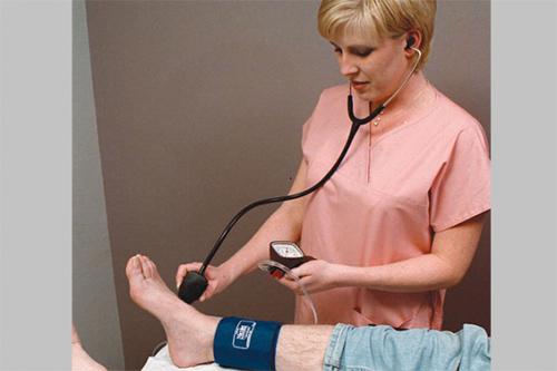 Suy giãn tĩnh mạch là gì và cách phát hiện bệnh