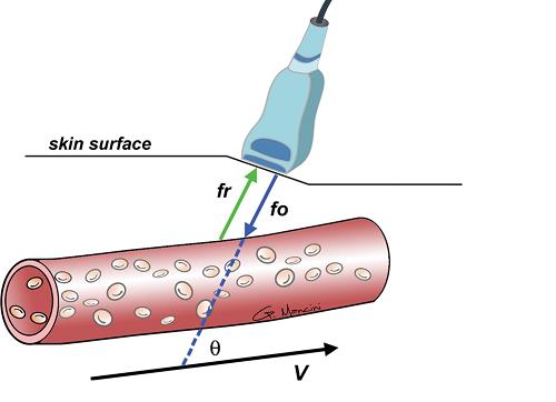 Siêu âm doppler mạch máu giúp chẩn đoán được những bệnh gì?