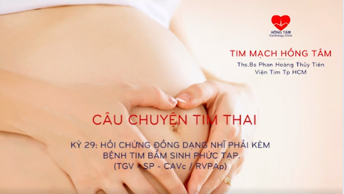 CHUYỆN TIM THAI | KỲ 29: HỘI CHỨNG ĐỒNG DẠNG NHĨ PHẢI KÈM BỆNH TIM BẨM SINH PHỨC TẠP. (TGV – SP – CAVc / RVPAp)