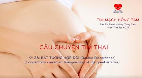 CHUYỆN TIM THAI | KỲ 28: BẤT TƯƠNG HỢP ĐÔI  (DOUBLE DISCORDANCE)