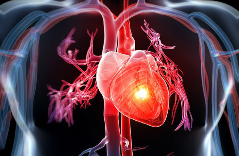 Khi nào thì nên phẫu thuật bắc cầu động mạch vành