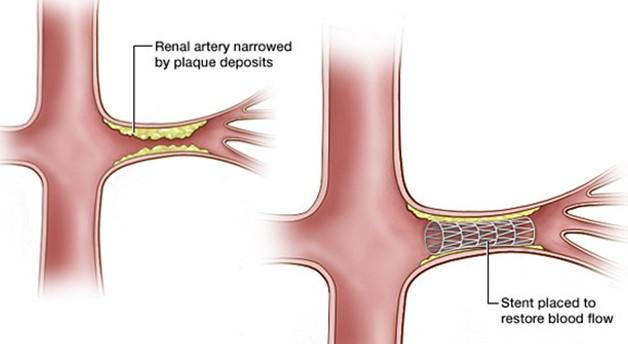 Biểu hiện của các bệnh lý liên quan đến hẹp động mạch thận