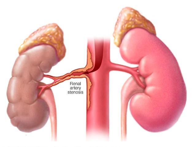 Biến chứng nguy hiểm do hẹp động mạch thận gây ra