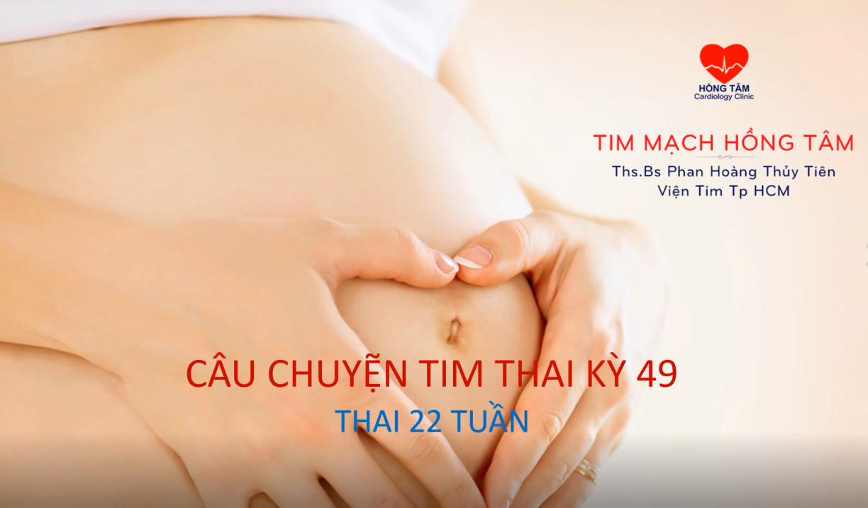 CÂU CHUYỆN TIM THAI KỲ 49: CUNG ĐỘNG MẠCH CHỦ ĐÔI