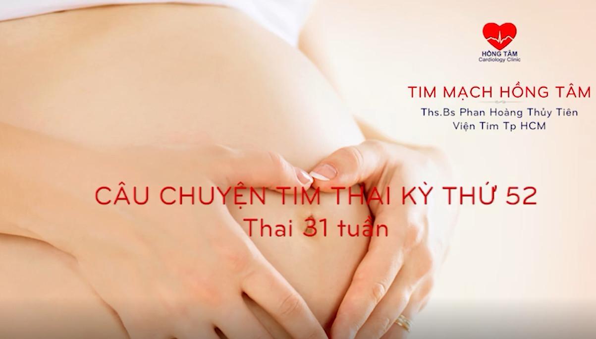 CÂU CHUYỆN TIM THAI KỲ 52: HẸP VAN ĐỘNG MẠCH CHỦ